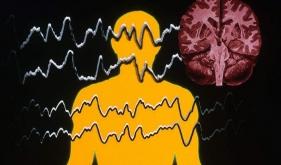 """那个长得像""""测谎仪""""的脑电图,检查的是什么?"""